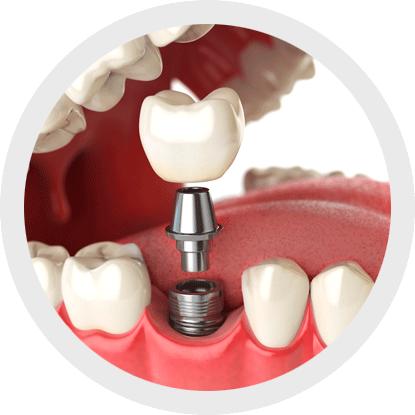 El uso de cepillos interproximales para la higiene de los implantes